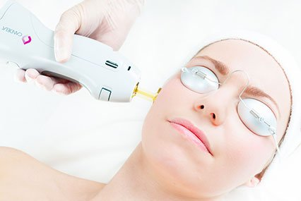 GentleLase Laser Hair Removal